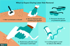 laser hair removal benefits safety