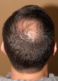 dr turowski hair restoration clinic