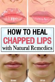 heal chapped lips with natural remes