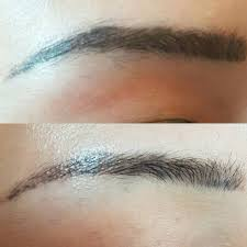 tattoo eyebrow removal before and after
