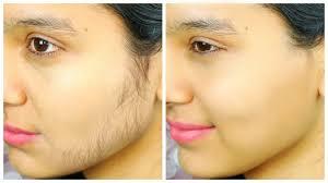 hair reduction facendental