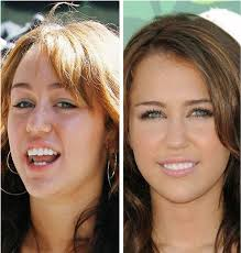 celebrities without makeup before and