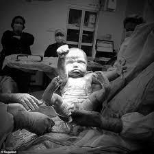Trẻ sơ sinh chào đời cực lạ: Bé như 'ĐI GIẢI CỨU THẾ GIỚI', bé lại ...