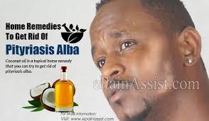 get rid of pityriasis alba