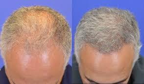neograft hair transplantation houston