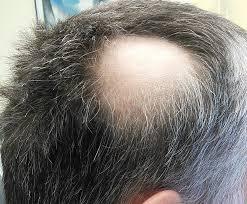 homeopathy for hair loss dr manoj s