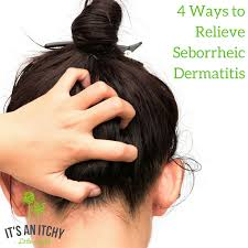 4 ways to relieve seborrheic dermais