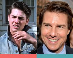 Facts About Tom Cruise Teeth: Before & After Braces - Mickleham Dental