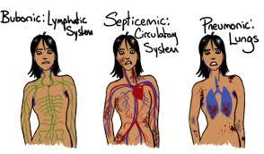 Symptoms - The Black Death