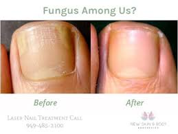 laser treatment for nail fungus removal