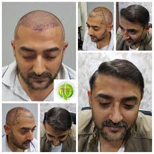 Image result for Hair Restoration