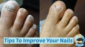 thick toenails look better cutting