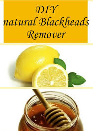 how to get rid of blackheads all for