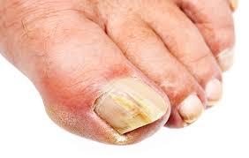 what causes toenail fungus how to