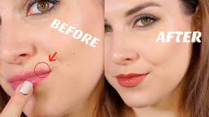 how to cover lip acne bailey b you