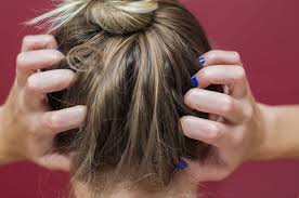 10 reasons your scalp might be itchy