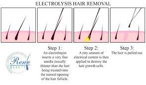 electrolysis hair removal procedure