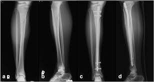 traumatic tibia shaft fractures caused
