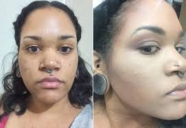 color correcting acne scars before and