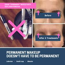 permanent makeup removal in chicago