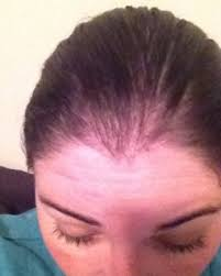 hair loss after gastric byp