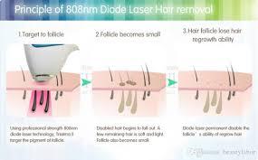 fast and easy laser epilation ipl
