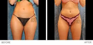 laser liposuction houston laser lipo