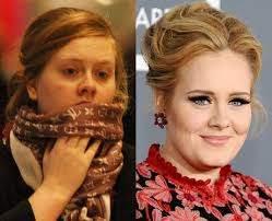 Bad Hair Day: Adele - Pop Star Bad Hair Days - Capital