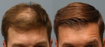 neograft hair restoration hair