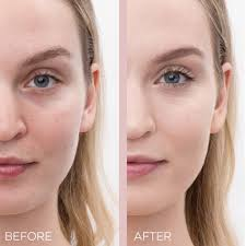 acne e skin with concealer