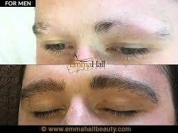micropigmentation for men emma hall