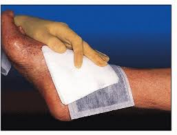 Image result for ACTİVE CAHRCOAL, WOUND CARE