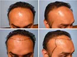 turban alopecia parsa mohebi