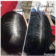 scalp pigmentation archives zaatar