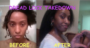 before and after pics of dreadlock b out
