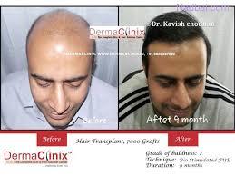 best hair transplant in delhi new delhi