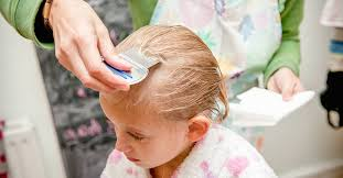 head lice infestation causes symptoms