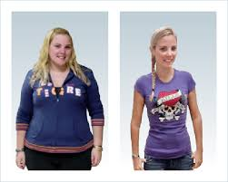 preparing for weight loss surgery your