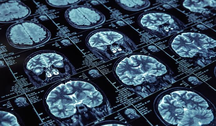 """Image result for Artificial Intelligence In Medical Imaging"""""""