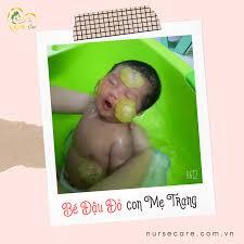 Bé Đậu Đỏ (con của mẹ Trang) - Điều Dưỡng Chăm Sóc Mẹ & Bé ...