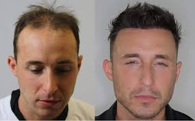alvi armani artistic hair transplants
