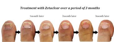 zetaclear 2019 reviews pros cons and