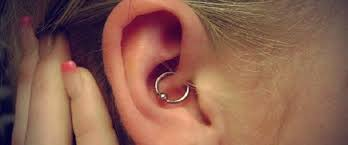 the daith piercing for migraine