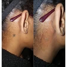 vanish ink laser tattoo removal 23
