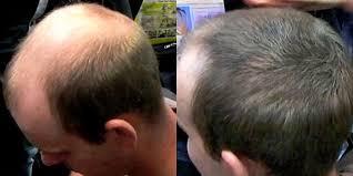 caboki for hair loss his hair clinic