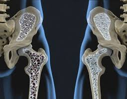 Resultado de imagen para osteopenia