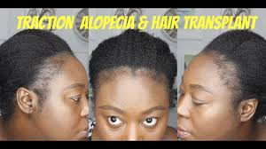 battling traction alopecia and getting