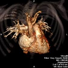 WEBINAR: Cardiovascular CT in Pediatric Patients: Technique and  Applications With Emphasis on New Generation Scanners   DAIC