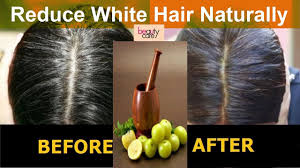 amla home remedy for white hair gray