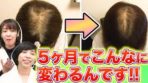 発毛への近道はコレ!!】効果的な育毛剤の付け方を教えます!! - YouTube